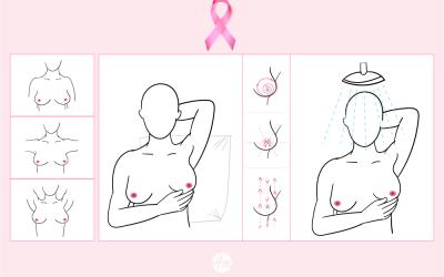 O autoexame é o primeiro passo da prevenção ao câncer de mama