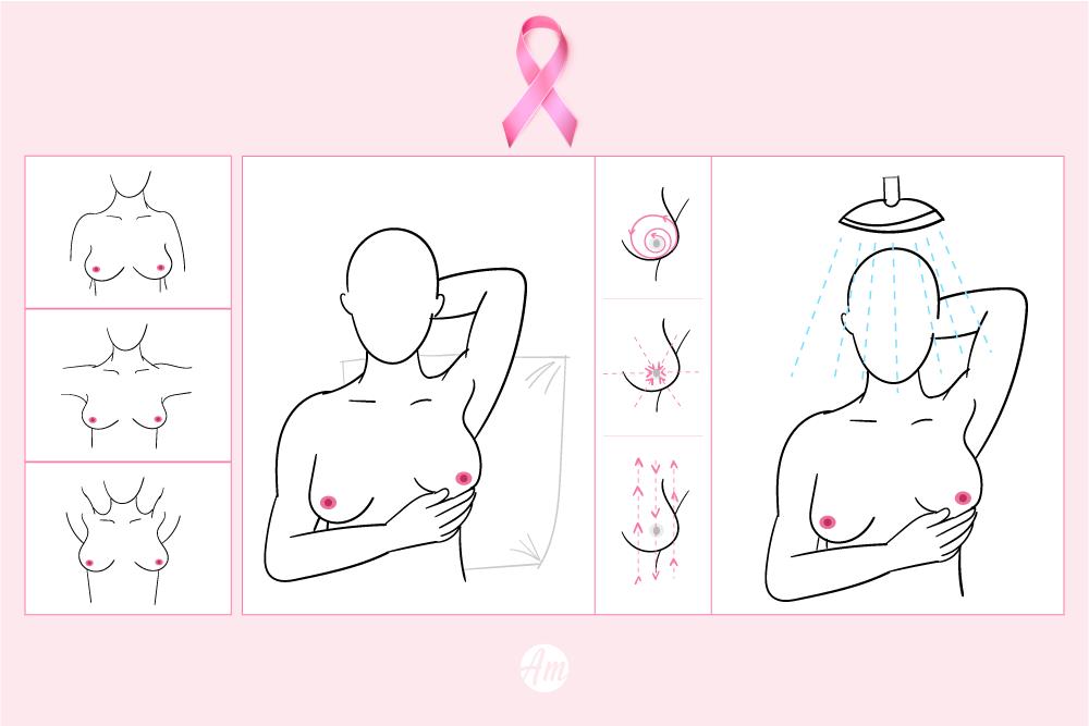 Como fazer o autoexame de mamas